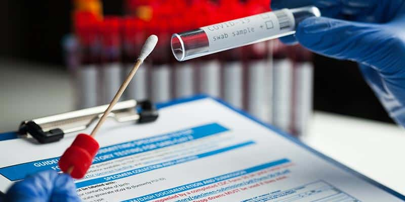 Why partner with AlphaBiolabs for Covid PCR testing?